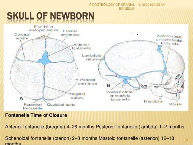 1 osteology of cranial bones rt(67) Dr. RAHUL TIWARI