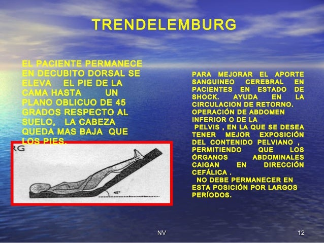 what is trendelenburg