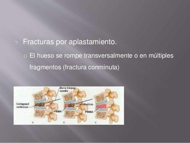 Fracturas por aplastamiento. El hueso se rompe transversalmente o en múltiples fragmentos (fractura conminuta)