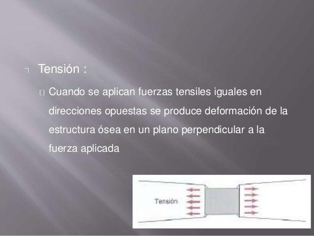 Tensión : Cuando se aplican fuerzas tensiles iguales en direcciones opuestas se produce deformación de la estructura ósea ...