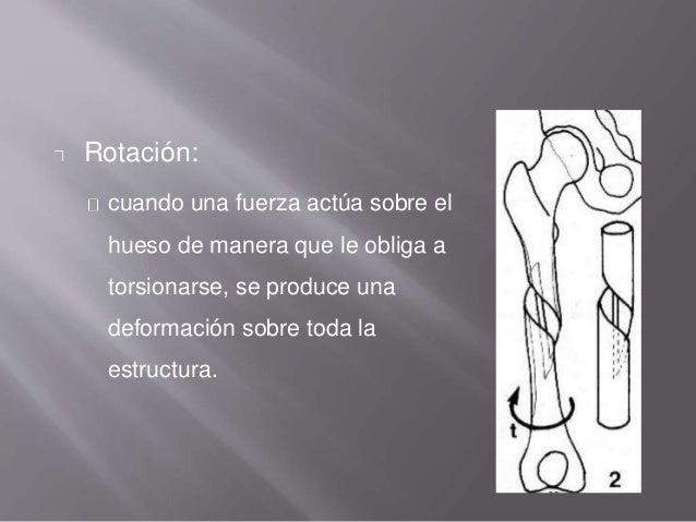 Rotación: cuando una fuerza actúa sobre el hueso de manera que le obliga a torsionarse, se produce una deformación sobre t...