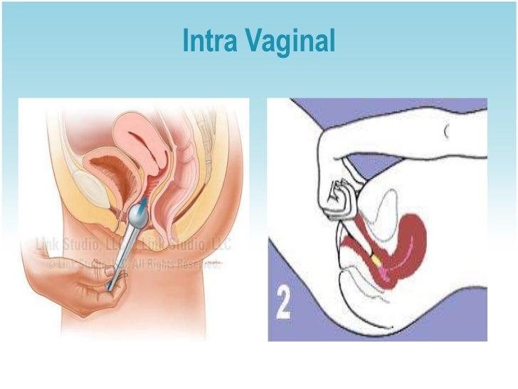 Intra Vaginal