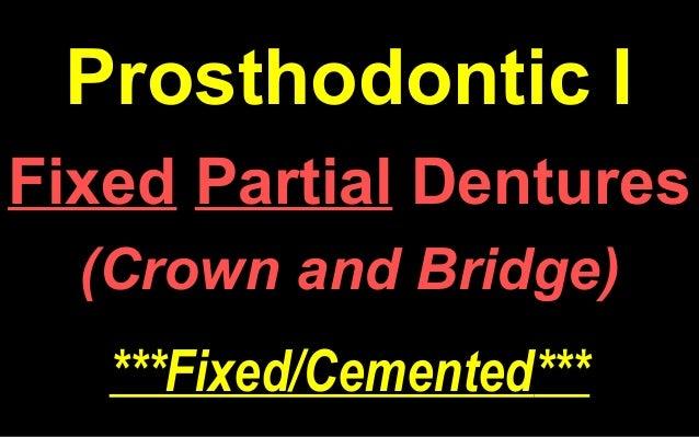 removable denture prosthodontics grant pdf