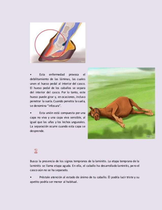 Atractivo Las Uñas Se Separe De La Uña Foto - Ideas Para Esmaltes ...