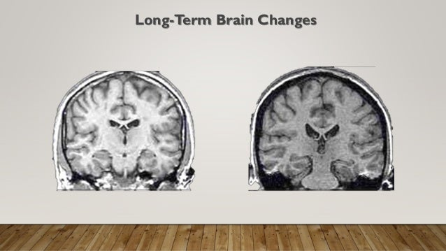 How Trauma Is Changing Childrens Brains >> Trauma Informed Game Based Learning For Kids
