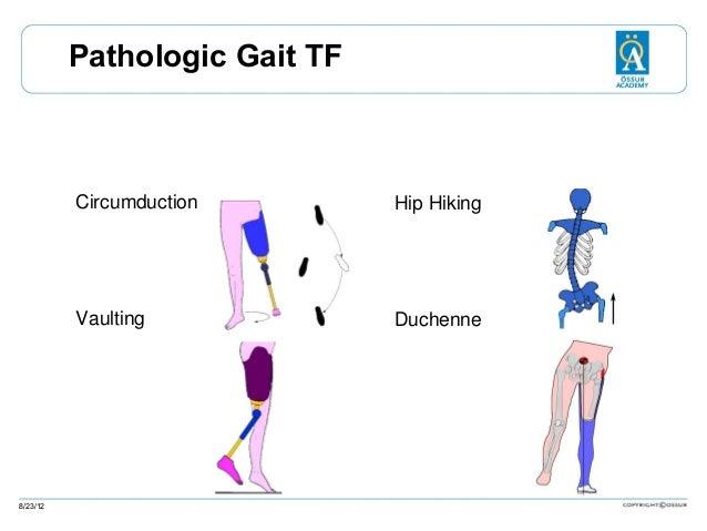 Pathologic Gait TF  Circumduction  Vaulting  8/23/12  Hip Hiking  Duchenne