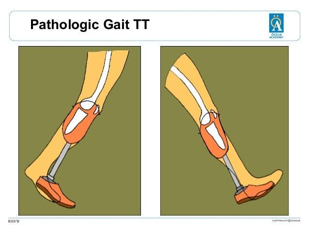 Pathologic Gait TT  8/23/12