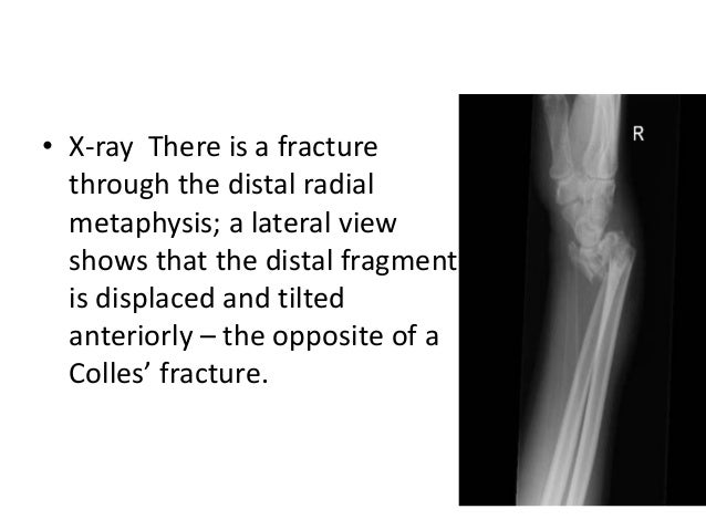 Smith Fractures