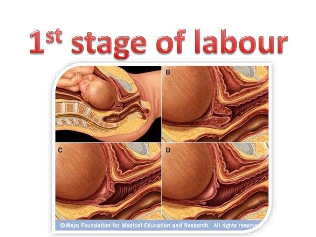 dilatation vaginale extreme