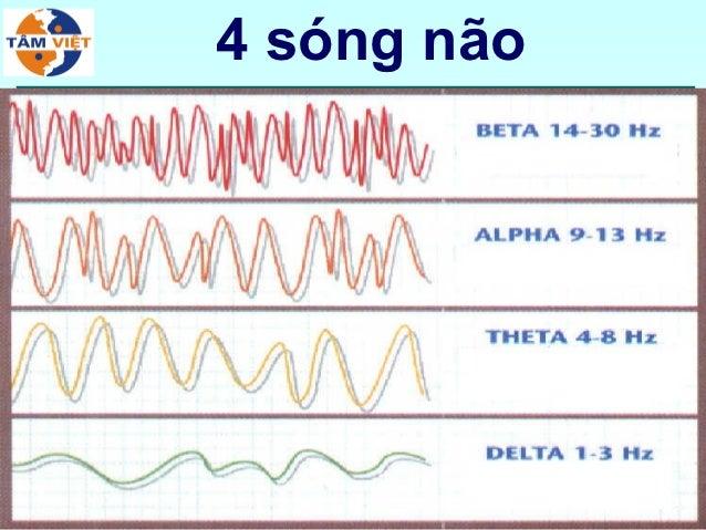 4 sóng não             47