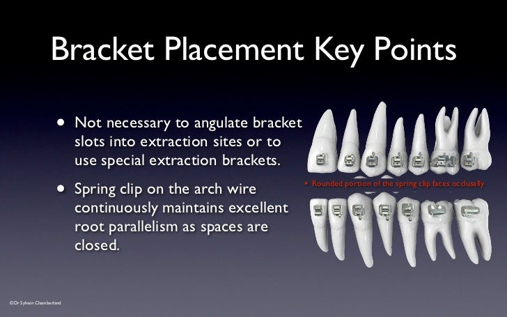 speed bracket placement guide v2012