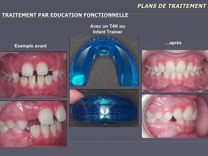 PLANS DE TRAITEMENT <ul><li>TRAITEMENT PAR EDUCATION FONCTIONNELLE </li></ul>Exemple avant … après Avec un T4K ou Infant T...