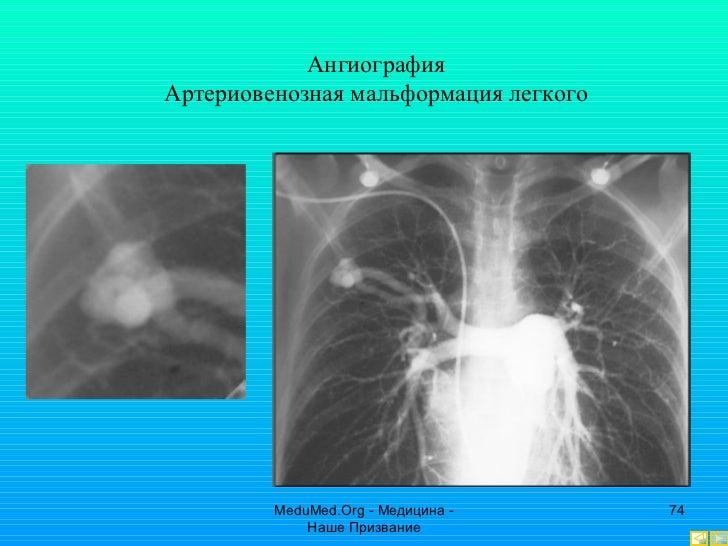 Интервенционная радиология