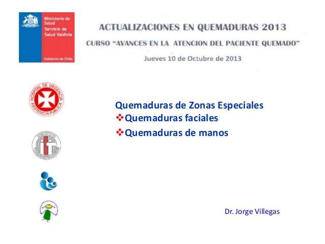 Quemaduras de Zonas Especiales Quemaduras faciales Quemaduras de manos Dr. Jorge Villegas