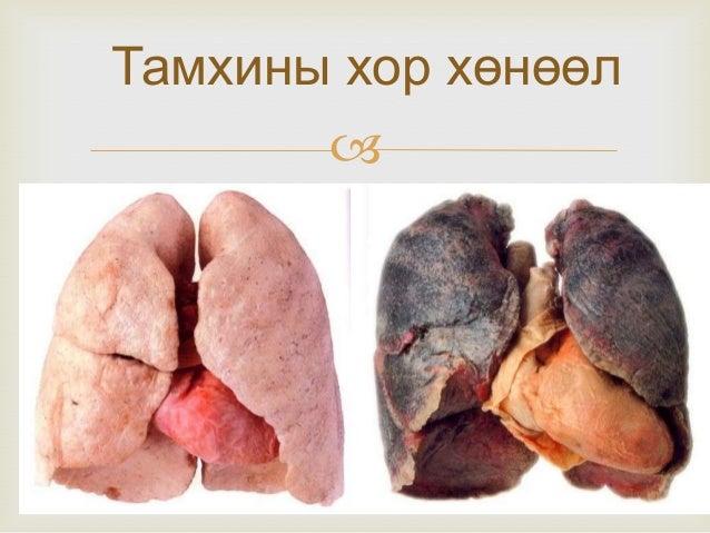 Тамхины хор хөнөөл 