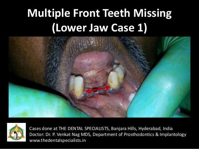 Multiple Front Teeth Missing (Lower Jaw Case 1) Cases done at THE DENTAL SPECIALISTS, Banjara Hills, Hyderabad, India Doct...