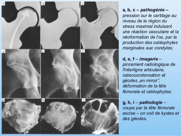 """Pincement radiologique de l'interligne articulaire, osteocondensation et géodes """"en miroir"""", déformation de la tête fémora..."""