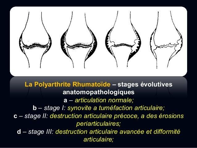  Des changements plus importants comme:  La résorption osseuse,  Les difformités,  Les luxations et la fragmentation o...