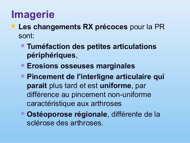 a b c d e PR – aspects radiologiques a – coxite rhumatismale avancée; b – osteoarthrite du genou, avancée (arthrite-arthro...