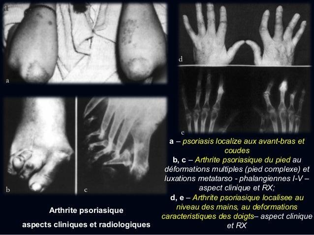  Le début systémique (la maladie de Still) - 20% des patients - caractérisée par: fièvre élevée, rash cutané, lymphadénop...