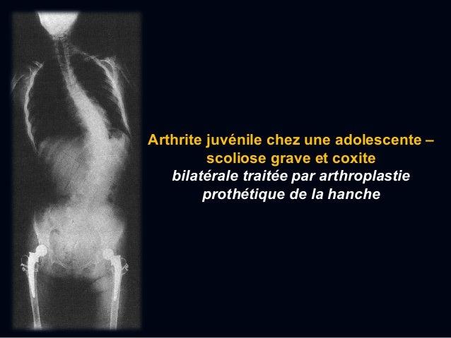  Le premier attaque – le début subit de l'arthrite douloureuse, le plus souvent au niveau de l'articulation metatarso-pha...