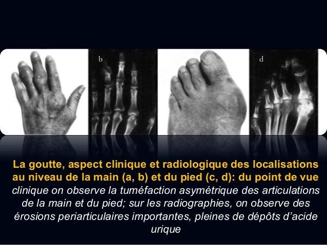 Imagerie  La calcification des ménisques et du cartilage hyalin parait comme des opacités radiologiques ponctuelles ou li...
