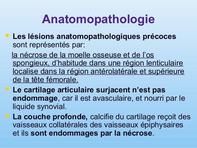 Etape II – les premières signes radiologiques comme des régions de condensation (osteosclerose souschondrale) alternée par...