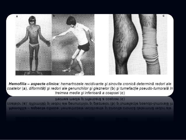La maladie de Gaucher, aspects RX