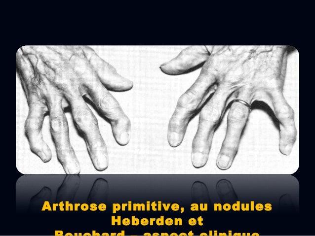 Imagerie  Les aspects RX typiques indiquent les changements anatomopathologiques tardive s de l'arthrose;  Les changemen...