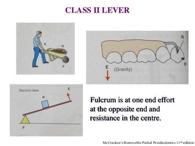 10: Principles of Removable Partial Denture Design
