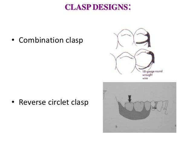 equipoise clasp design