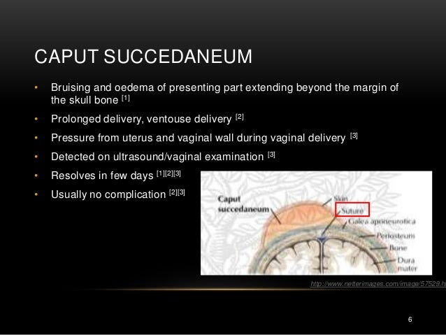 Caput succedaneum ultrasound