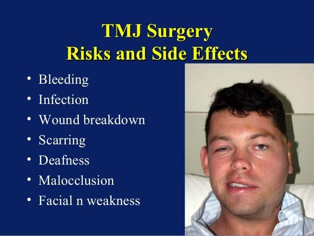 Overview Tmj Surgery Dental Courses