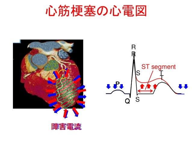 心臓の働きとその異常 2
