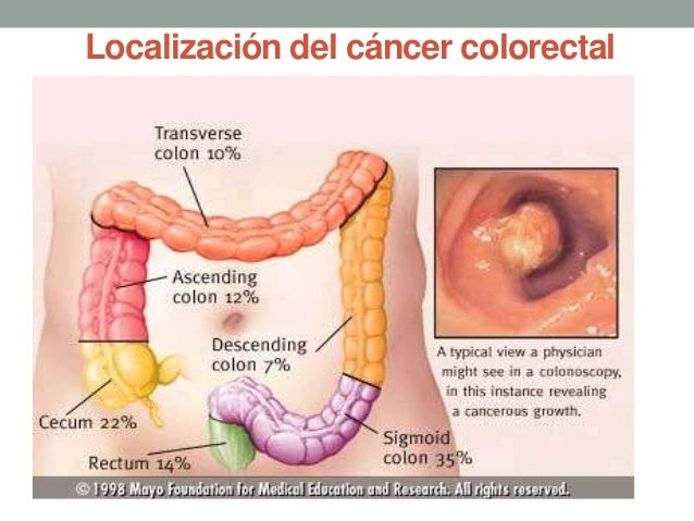 2. cancer de colon