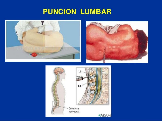 Anatomía y Fisiología de la Médula Espinal - AVC
