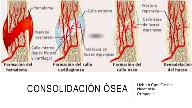 CONSOLIDACION OSEA DOWNLOAD