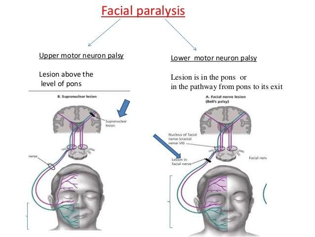 2  facial glossopharyngeal cervical plexus
