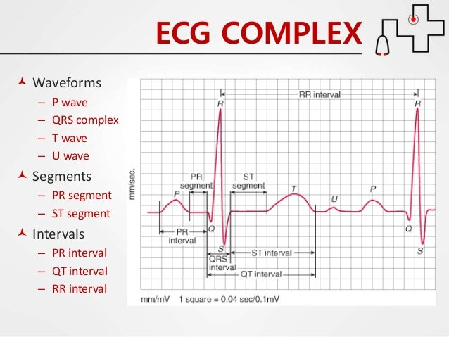 Ecg wave diagram wiring diagram cardiology 2 1 ecg or ekg by dr farjad ikram normal ekg heart block and wave ecg wave diagram ccuart Choice Image