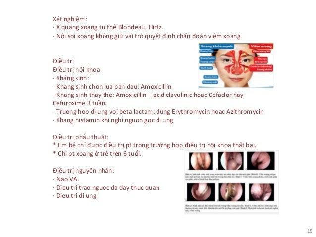 15 Xét nghiệm: · X quang xoang tư thế Blondeau, Hirtz. · Nội soi xoang không giữ vai trò quyết định chẩn đoán viêm xoang. ...