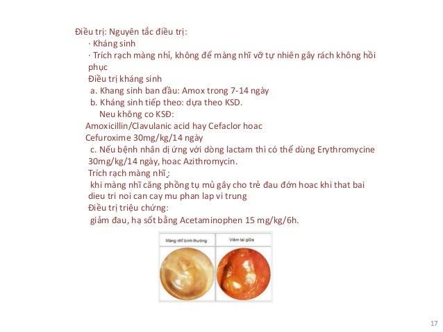 17 Điều trị: Nguyên tắc điều trị: · Kháng sinh · Trích rạch màng nhỉ, không để màng nhĩ vỡ tự nhiên gây rách không hồi phụ...