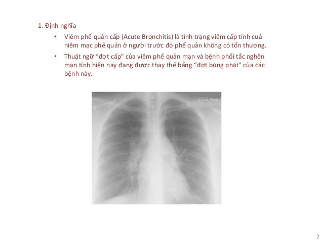 2 1. Định nghĩa • Viêm phế quản cấp (Acute Bronchitis) là tình trạng viêm cấp tính cuả niêm mạc phế quản ở người trước đó ...
