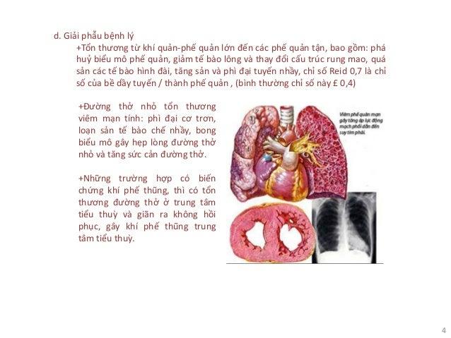 4 d. Giải phẫu bệnh lý +Tổn thương từ khí quản-phế quản lớn đến các phế quản tận, bao gồm: phá huỷ biểu mô phế quản, giảm ...