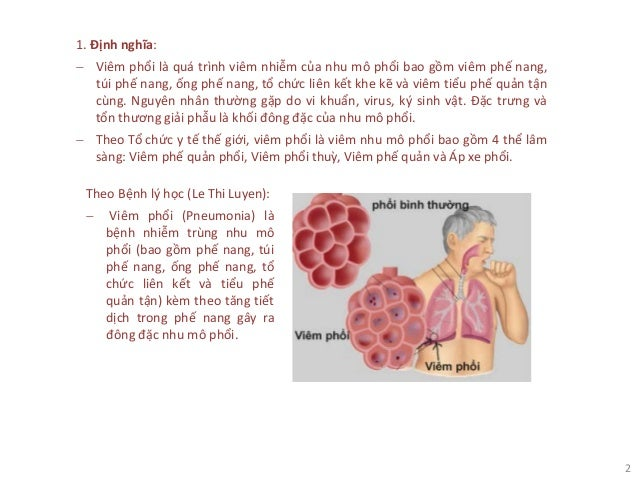 2 1. Định nghĩa: − Viêm phổi là quá trình viêm nhiễm của nhu mô phổi bao gồm viêm phế nang, túi phế nang, ống phế nang, tổ...