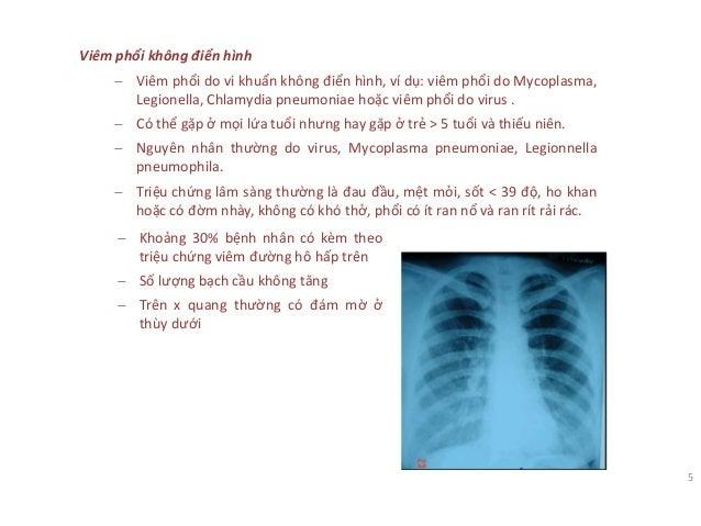 Viêm phổi không điển hình − Viêm phổi do vi khuẩn không điển hình, ví dụ: viêm phổi do Mycoplasma, Legionella, Chlamydia p...