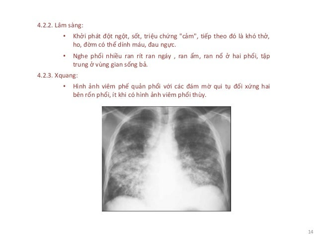 """14 4.2.2. Lâm sàng: • Khởi phát đột ngột, sốt, triệu chứng """"cảm"""", tiếp theo đó là khó thở, ho, đờm có thể dính máu, đau ng..."""