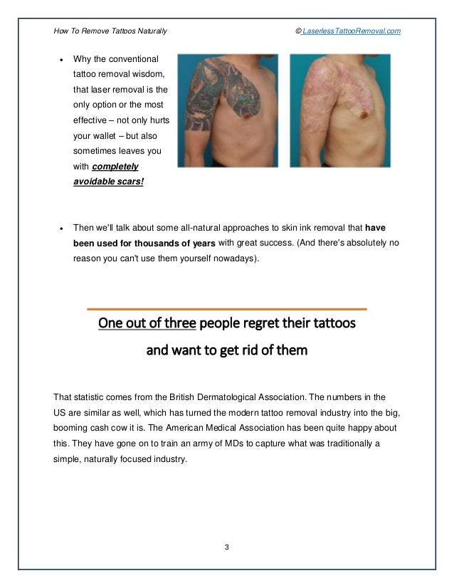 Rejuvi Tattoo Removal Before And After