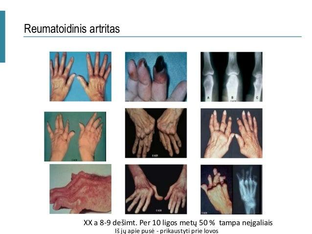 Rheumatoid Arthritis, Estrogen, and Menopause: What's the Link?