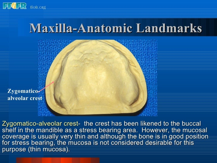 Maxilla-Anatomic Landmarks Zygomatico- alveolar crest Zygomatico-alveolar crest -  the crest has been likened to the bucca...