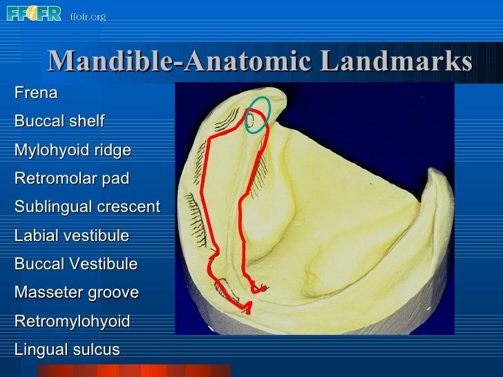 Mandible-Anatomic Landmarks Frena Buccal shelf Mylohyoid ridge Retromolar pad Sublingual crescent Labial vestibule Buccal ...